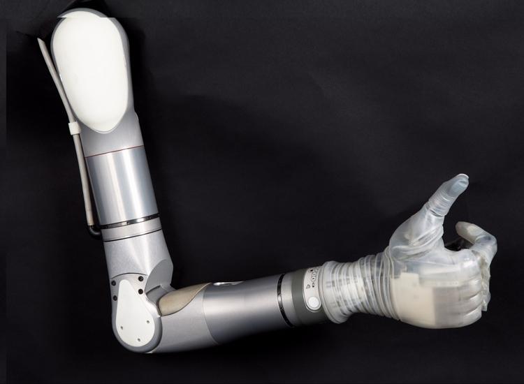 Mobius Bionics