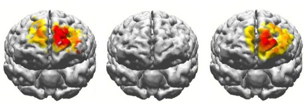 1 изображение - активность мозга 20-ти летнего испытуемого во время использования рабочей памяти, второе - отсутствие таковой у пожилого человека, третье - мозг пожилого человека после стимуляции. (Reinhart lab/Boston University)