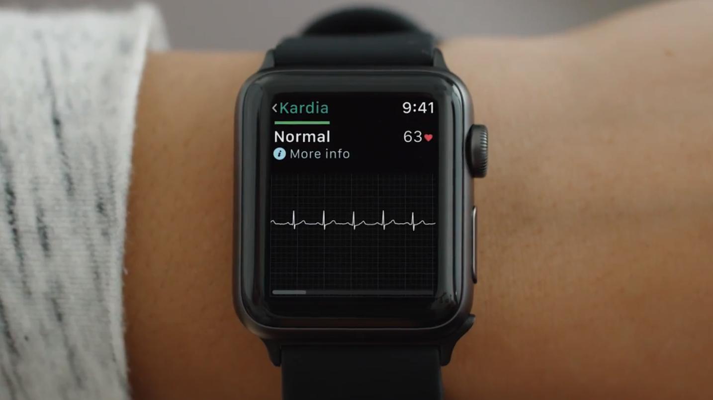 В конце прошлого года в версии watchOS 5.1.2 Apple Watch получили обновление с приложением для записи ЭКГ