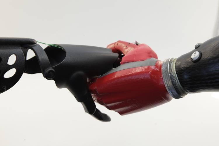 """Протезы рук со встроенной телеметрией позволяют удалённо устранять проблемы"""""""