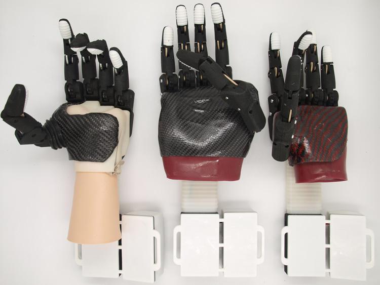 Бионические протезы SmartLi. Источник изоражения Ростех