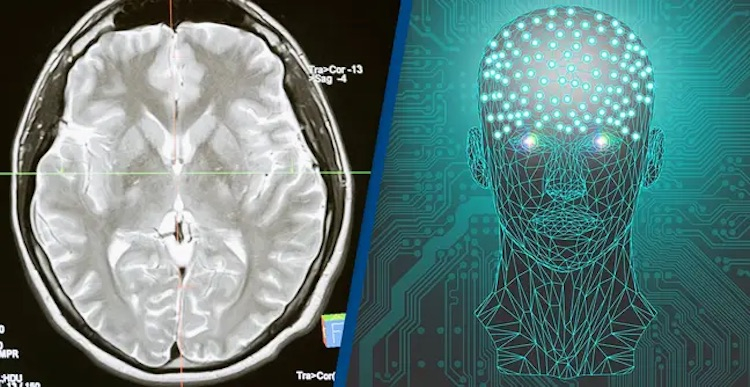 Учёные впервые в истории подключили человеческий мозг к компьютеру по беспроводной сети